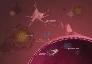 brain-plaques