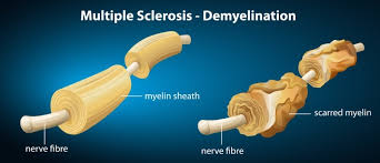 1295f98c29 Q Therapeutics Approved to Start Trial of Cell Therapy Aiming to Restore  Myelin